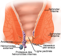 résorption hemorroide externe